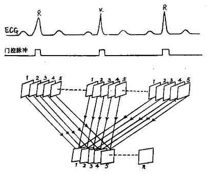 心电门控帧模式数据采集示意图