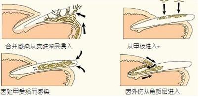 灰指甲是如何感染的
