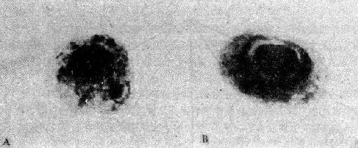 巨細胞病毒包涵體