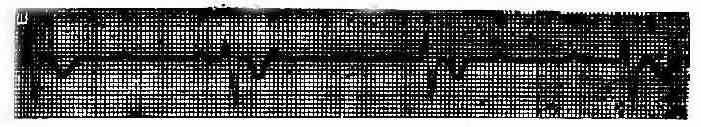 第三度房室传导阻滞(心室起搏点在房室束分叉以下)QRS波>0.12秒
