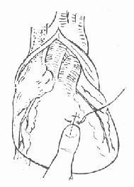 心脏裂口缝合法之一