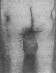 脆性X染色体(Fra X)综合征 患者大睾丸