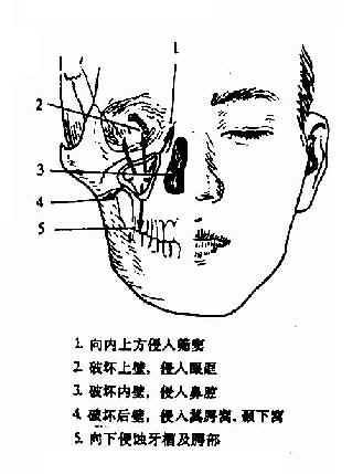 上颌窦癌的发展方向