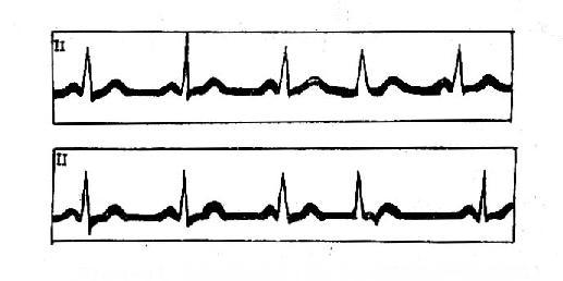交界性期前收缩(逆行P波与期前的QRS波相重迭)