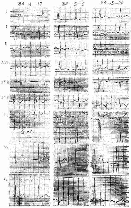 慢性冠状动脉供血不足