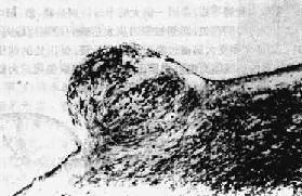 颗粒性室管膜炎