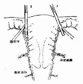 1.应斜向钳夹,以阴断全部上行血流2.垂直夹,可将部分血管遗漏