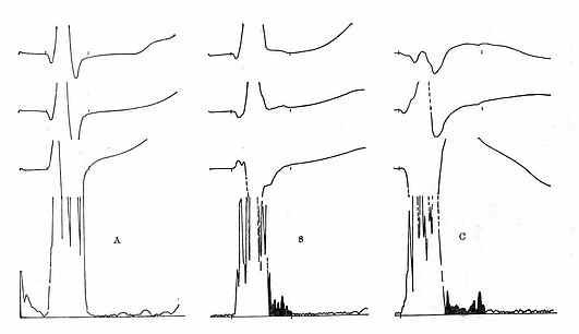 正常与异常的信号叠加心电图