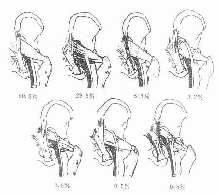坐骨神经与梨状肌的关系类型