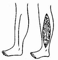 小腿外侧深筋膜切开减压