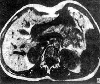 右肾上腺腺瘤MRI