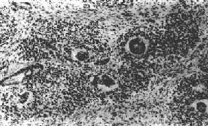 肾母细胞瘤