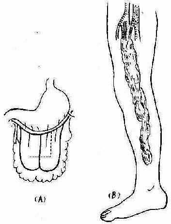 游离网膜移植术