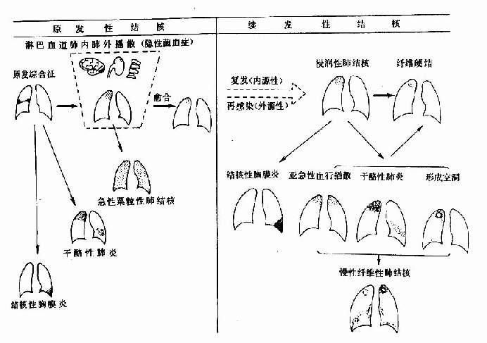 肺结核病自然过程示意图