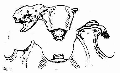 全子宫及右侧附件切除范围示意图