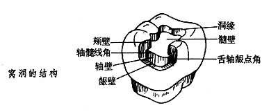 窝洞的结构