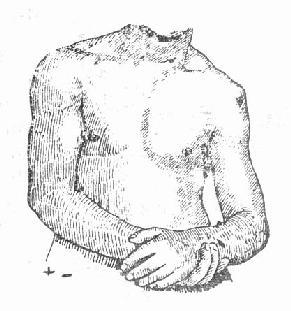 左肩关节脱位畸形