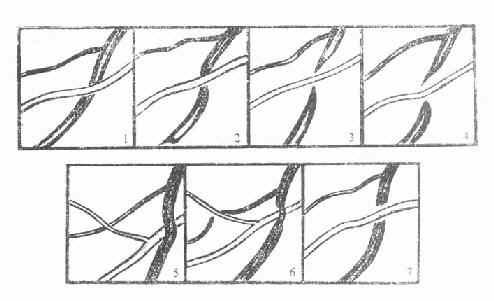 正常与硬化的视网膜动静脉交叉现象