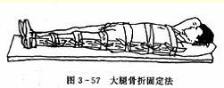 大腿骨折固定法