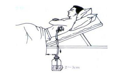 胸腔闭式引流术.jpg
