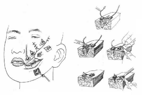 钢丝铅丸定向减张缝合