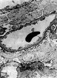 轻微病变性肾小球肾炎