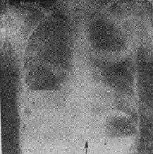 金葡萄肺炎之X线表现