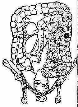 左半结肠癌切除术