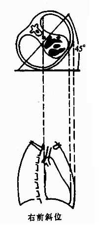 不同体位心、大血管结构投影示意图