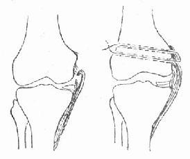 内侧副韧带完全断裂与手术修复示意图