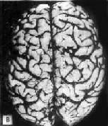 初老期痴呆的腦 B