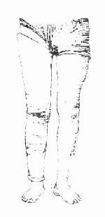"""半月板损伤解除""""交锁""""后,长腿石膏固定"""