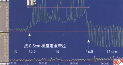 一例9月龄患儿食管定点牵拉测压图