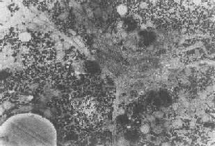 肝细胞内脂褐素颗粒残存小体即终末溶酶体