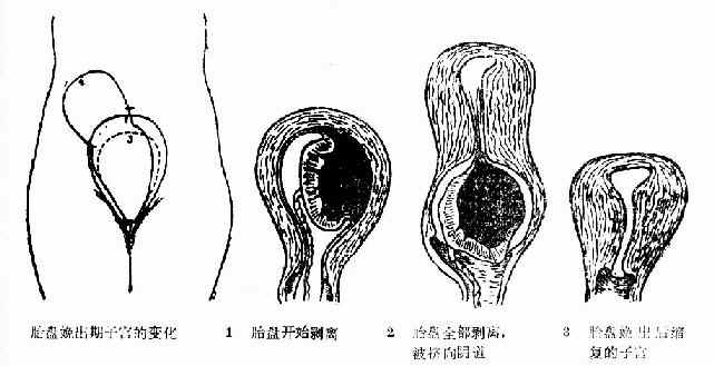 胎盤娩出過程