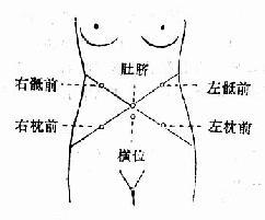 不同胎位的胎心音聽取部位