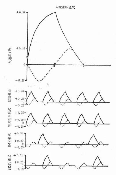 几种通气模式的典型气道压力曲线