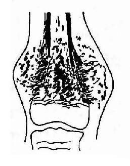 股骨远侧干骺端骨肉瘤(硬化型)