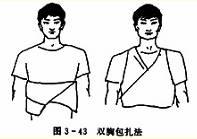 双胸毛巾包扎法