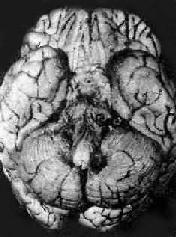 结核性脑膜炎