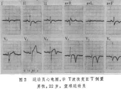 运动员心脏心电图