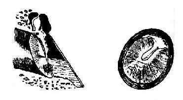 鼓膜切开术及鼓室置管术