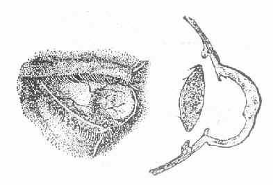 全角膜葡萄肿