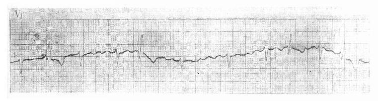 心房纤颤时差异传导的QRS波群
