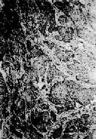 食管鳞状细胞癌