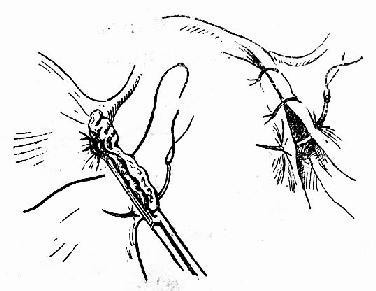 缝扎蒂部及缝合阔韧带前后以覆盖粗糙面