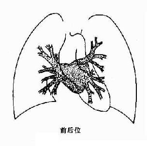 正常肺靜脈、左心房造影示意圖