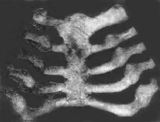 佝偻病的肋骨
