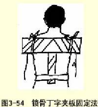 鎖骨骨折丁字夾板固定法