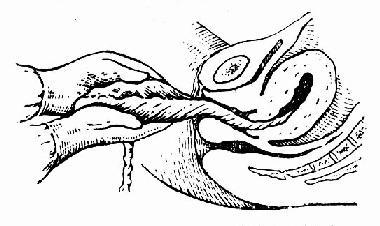 向一个方向旋转胎盘,使胎膜完整剥离娩